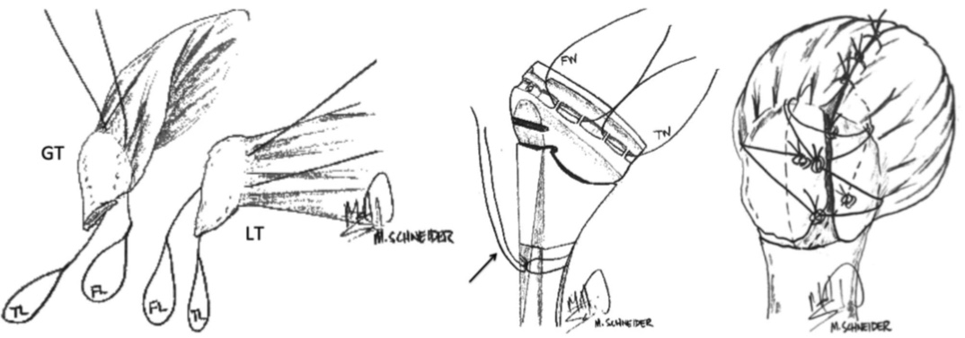 Illustrations (left to right): The greater and lesser tuberosities prepared with sutures, the prepared humeral implant for tuberosity repair, and the final construct with humeral stem implanted and tuberosities repaired.