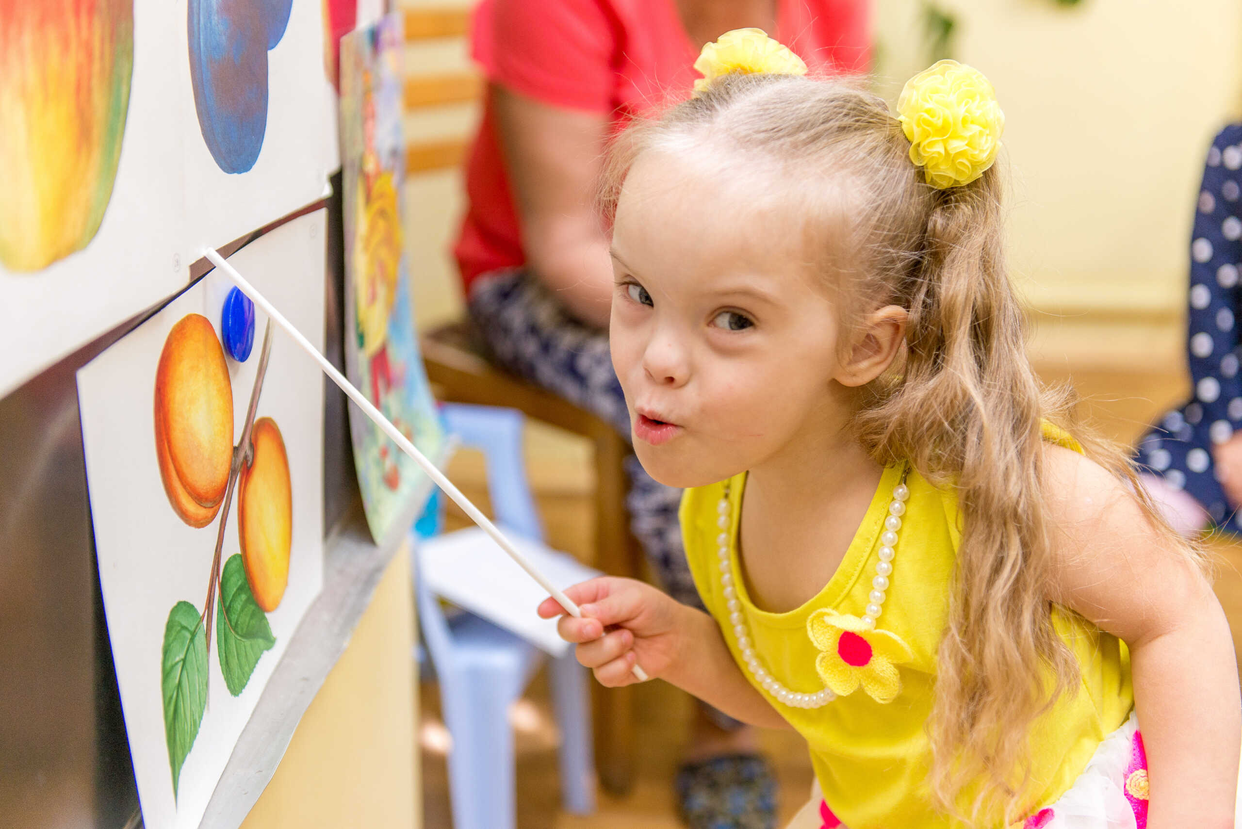 Speech impairment children with Down syndrome